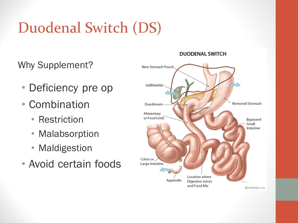 Duodenal Switch (DS) Deficiency pre op Combination Avoid certain foods