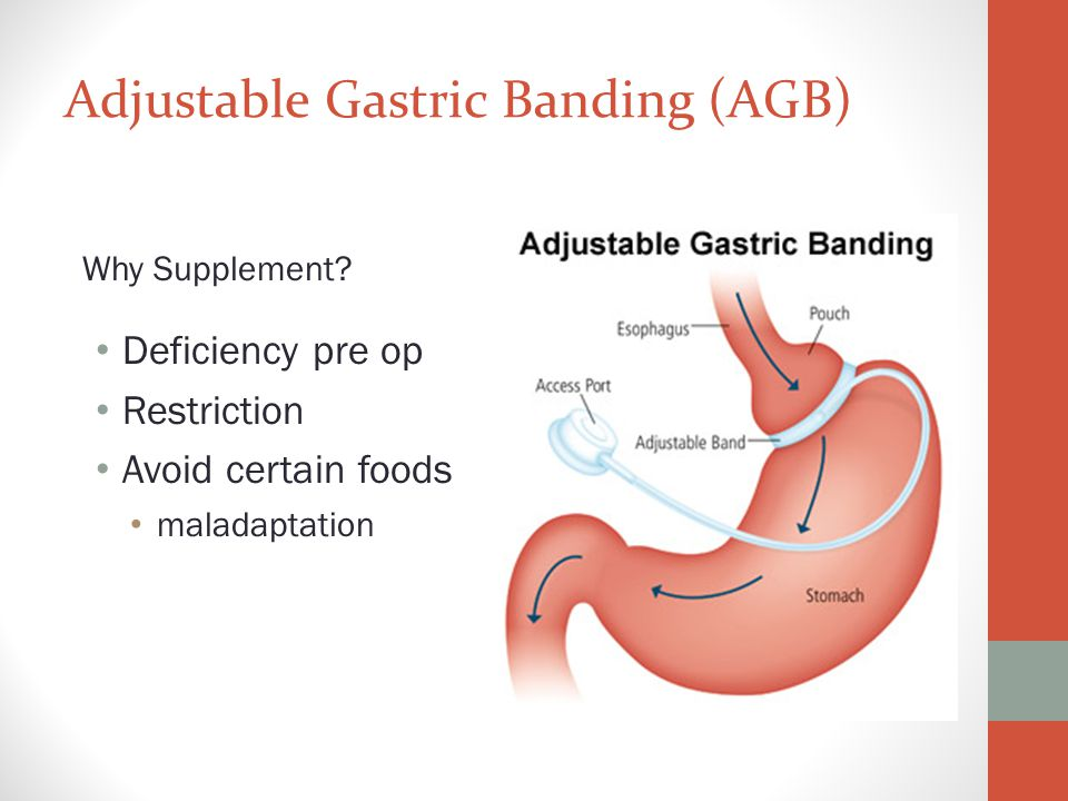 Adjustable Gastric Banding (AGB)