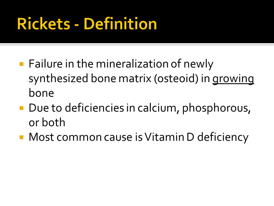Rickets - Definition Failure in the mineralization of newly synthesized bone matrix (osteoid) in growing bone.