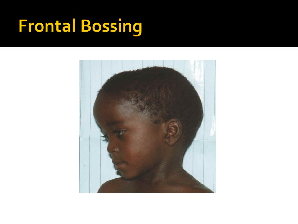 Frontal Bossing