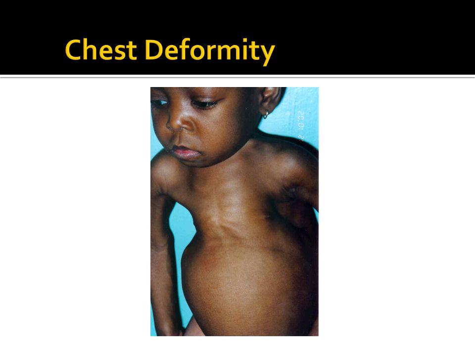 Chest Deformity Harrison's groove