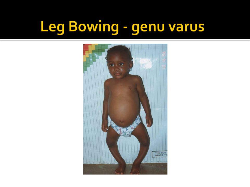 Leg Bowing - genu varus