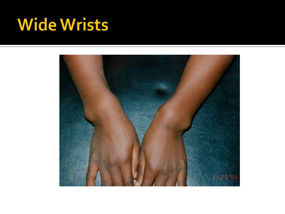 Wide Wrists