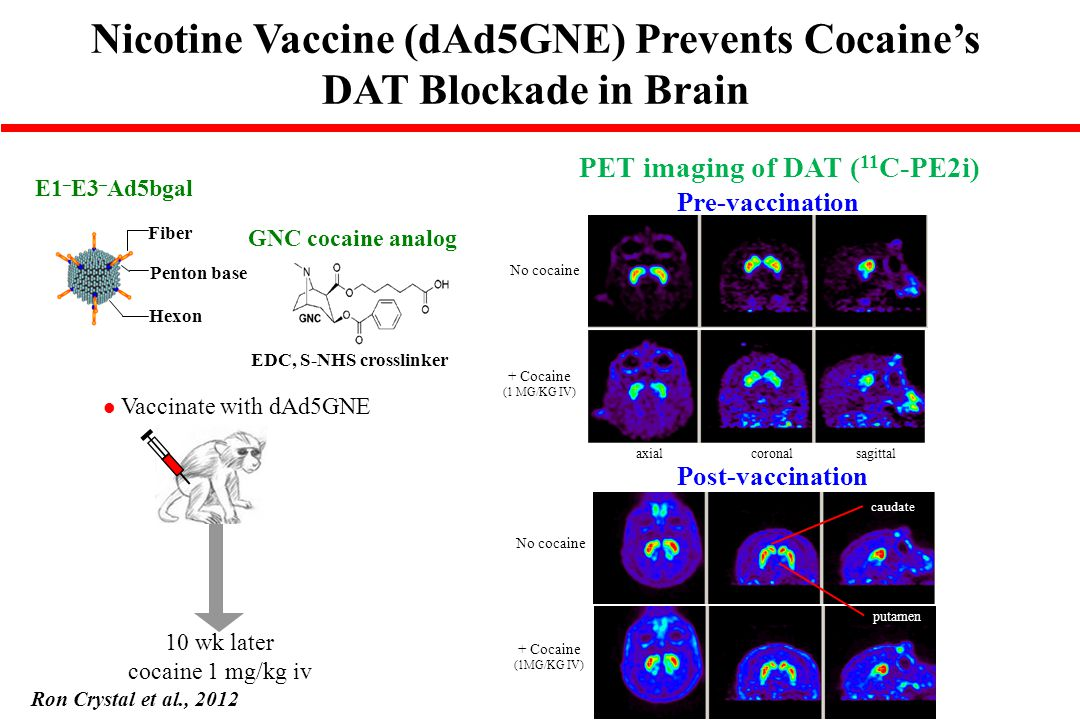 Nicotine Vaccine (dAd5GNE) Prevents Cocaine's DAT Blockade in Brain