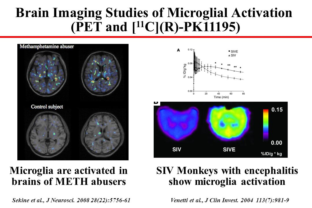 Brain Imaging Studies of Microglial Activation