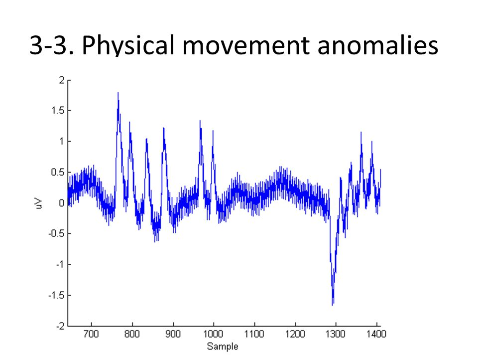 3-3. Physical movement anomalies