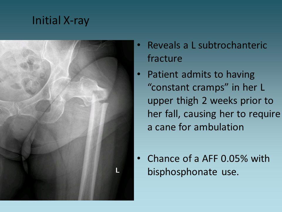 Initial X-ray Reveals a L subtrochanteric fracture
