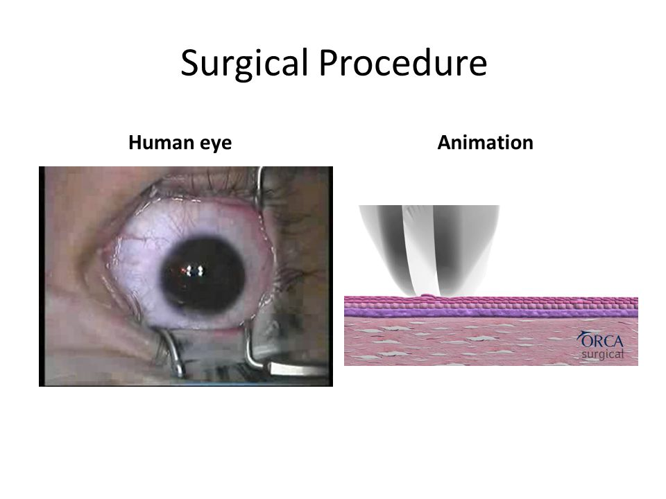 Surgical Procedure Human eye Animation