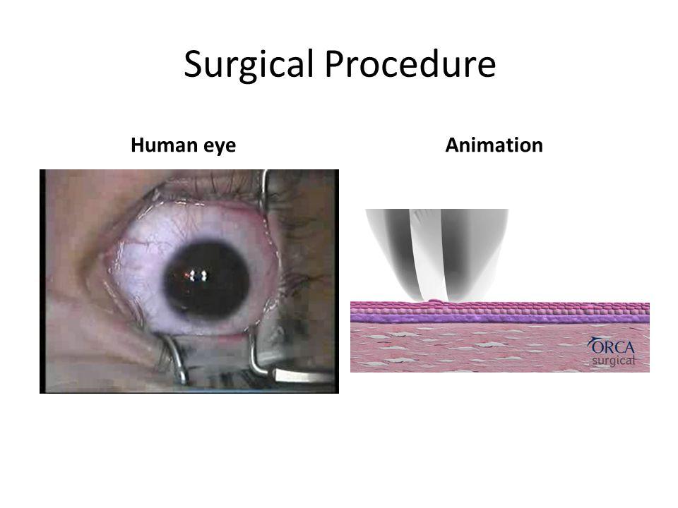 Surgical Procedure Human eye Animation
