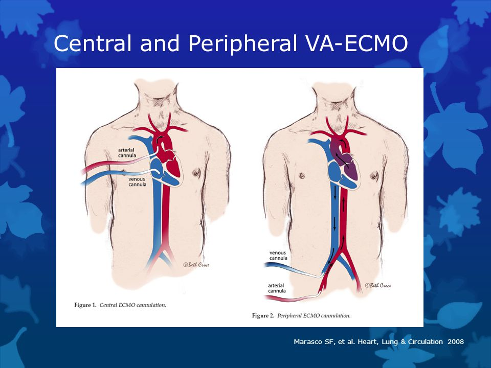 Central and Peripheral VA-ECMO