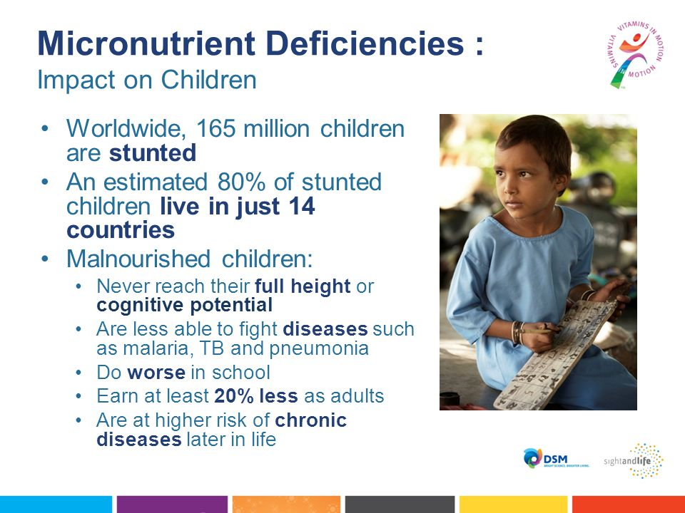 Micronutrient Deficiencies : Impact on Children