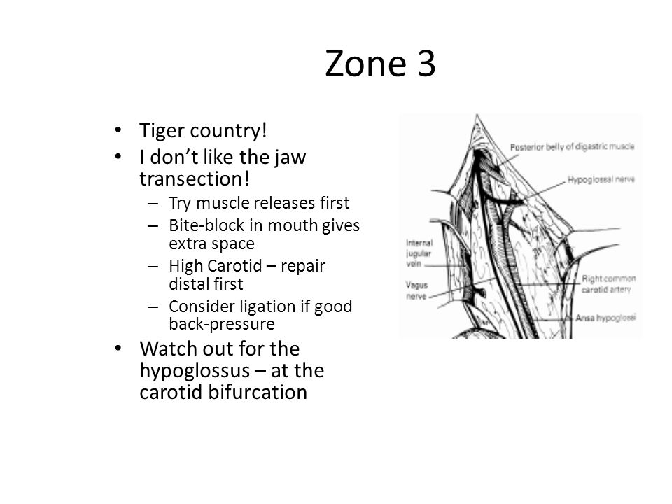 Zone 3 Tiger country! I don't like the jaw transection!