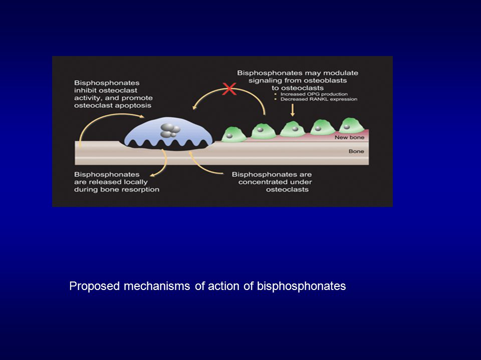 Proposed mechanisms of action of bisphosphonates