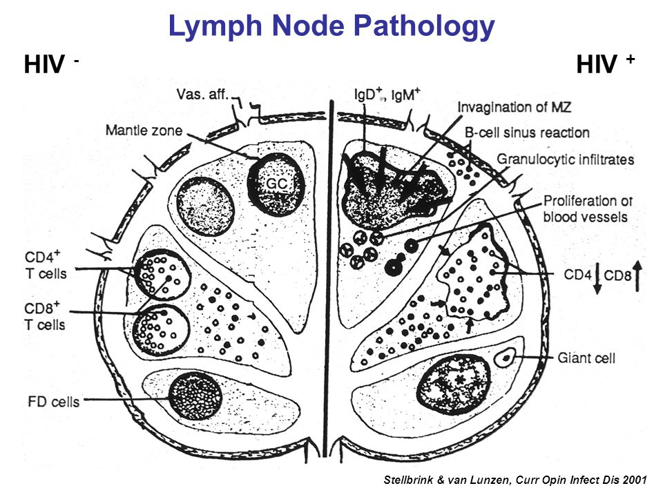 Lymph Node Pathology HIV - HIV +