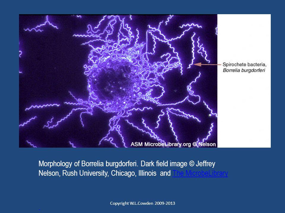 Morphology of Borrelia burgdorferi