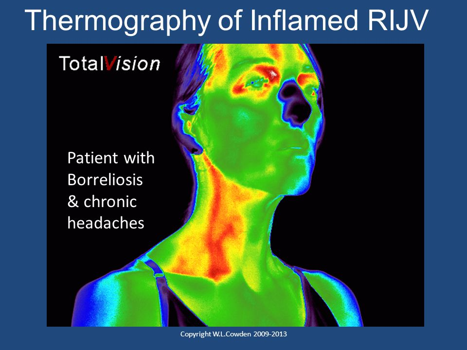 Thermography of Inflamed RIJV