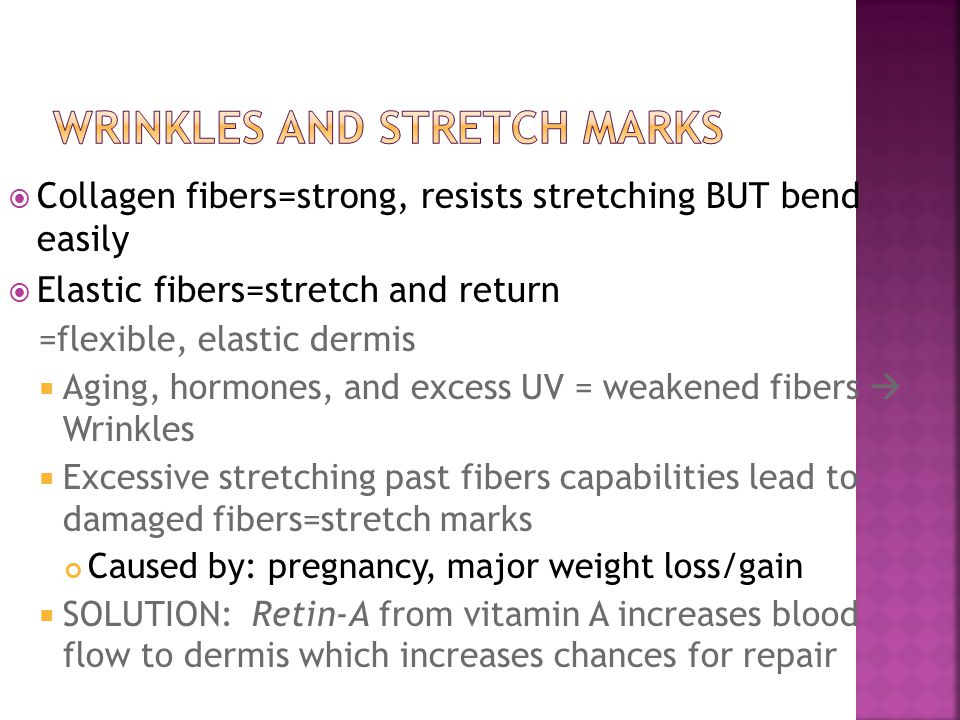 Wrinkles and Stretch Marks