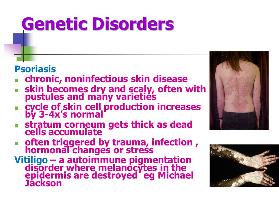 Genetic Disorders Psoriasis chronic, noninfectious skin disease