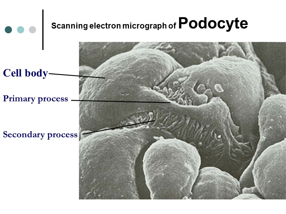 Scanning electron micrograph of Podocyte