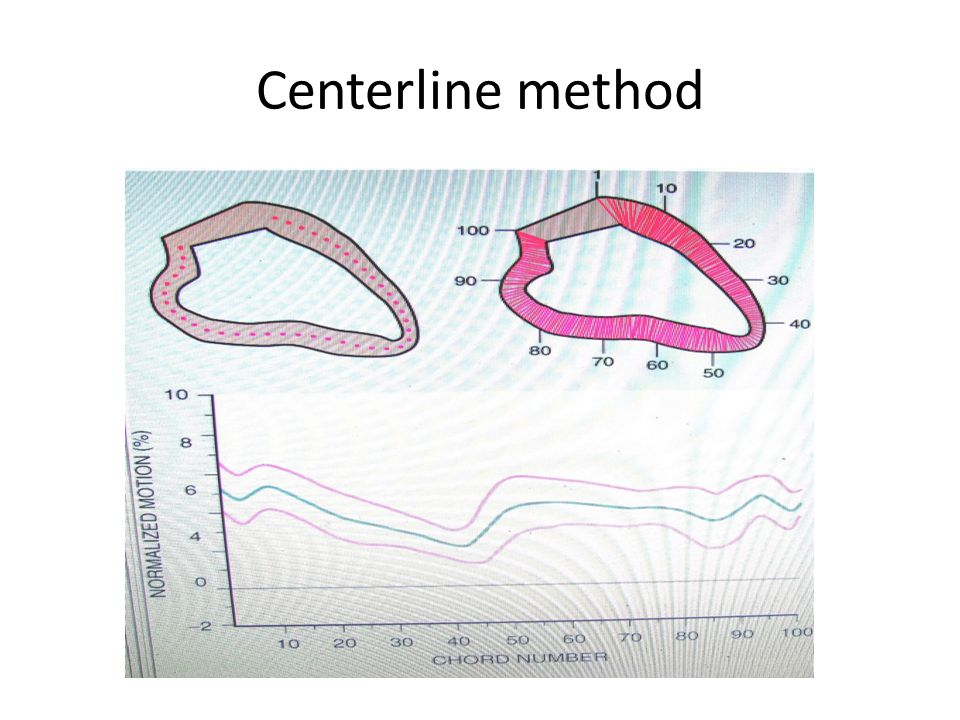 Centerline method