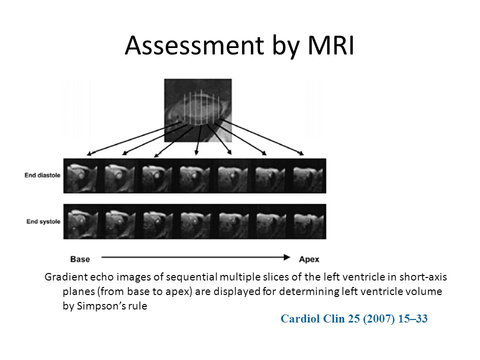 Assessment by MRI