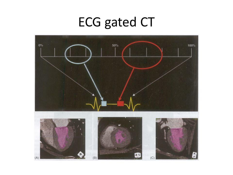ECG gated CT