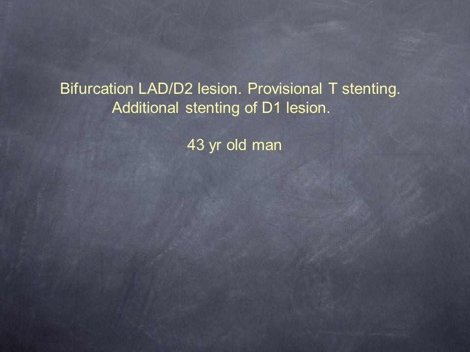 Bifurcation LAD/D2 lesion. Provisional T stenting.