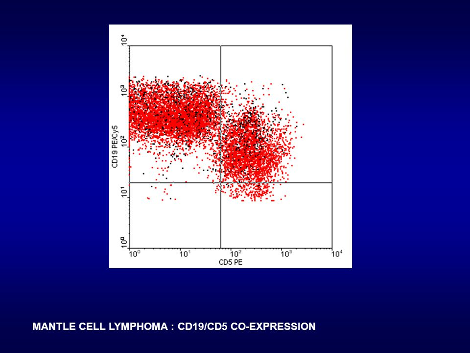 MANTLE CELL LYMPHOMA : CD19/CD5 CO-EXPRESSION