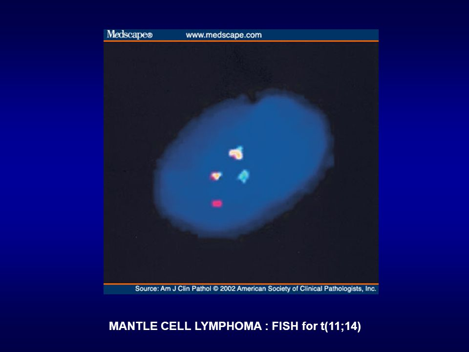 MANTLE CELL LYMPHOMA : FISH for t(11;14)