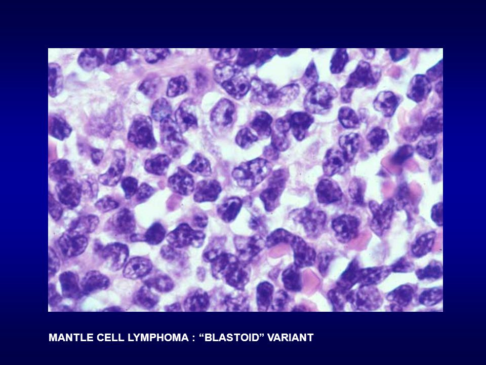 MANTLE CELL LYMPHOMA : BLASTOID VARIANT