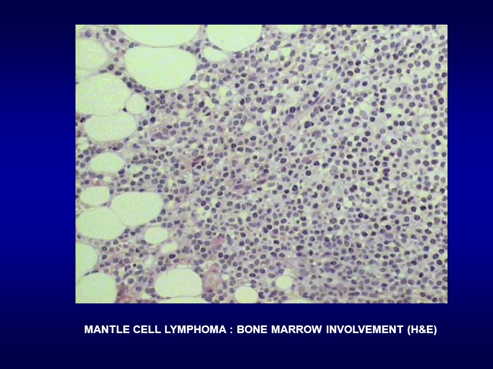 MANTLE CELL LYMPHOMA : BONE MARROW INVOLVEMENT (H&E)