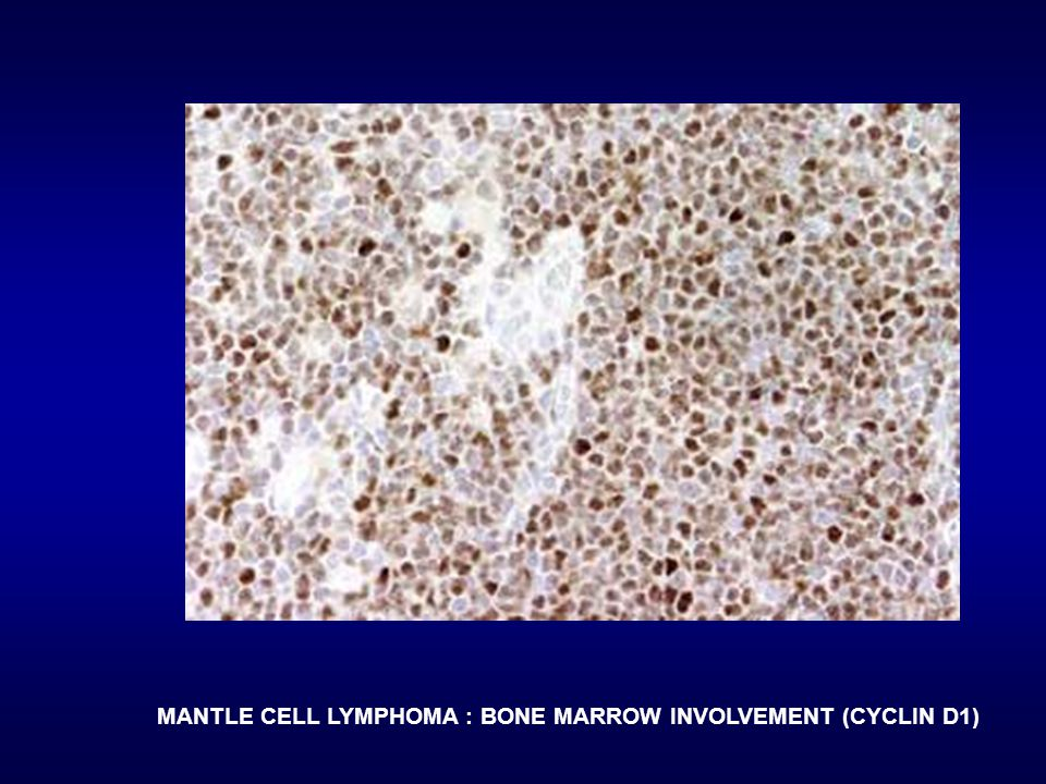 MANTLE CELL LYMPHOMA : BONE MARROW INVOLVEMENT (CYCLIN D1)