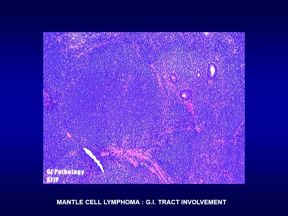 MANTLE CELL LYMPHOMA : G.I. TRACT INVOLVEMENT