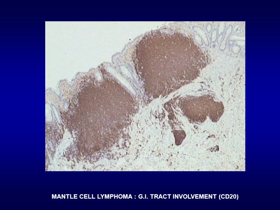 MANTLE CELL LYMPHOMA : G.I. TRACT INVOLVEMENT (CD20)