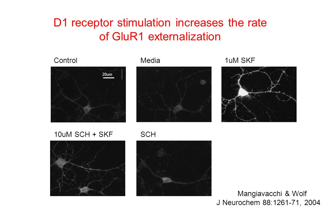 D1 receptor stimulation increases the rate of GluR1 externalization