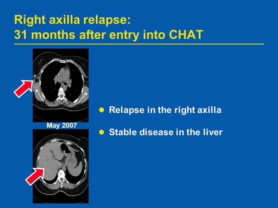 Right axilla relapse: 31 months after entry into CHAT