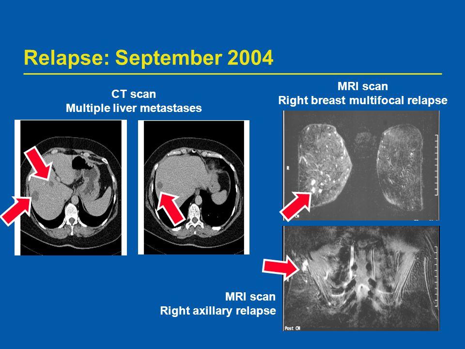 Right breast multifocal relapse Multiple liver metastases