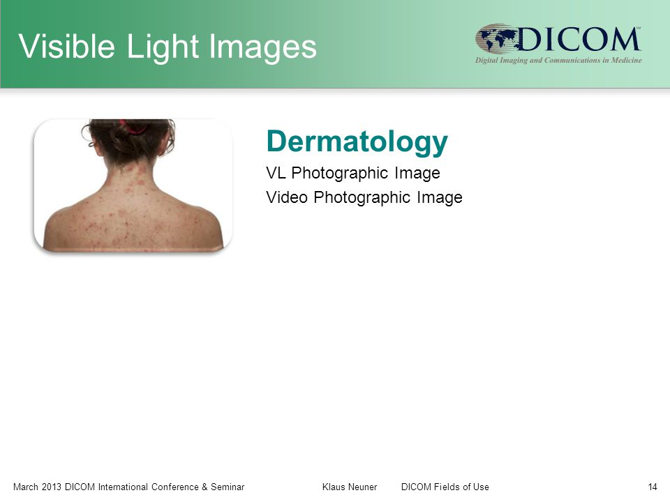Visible Light Images Dermatology VL Photographic Image