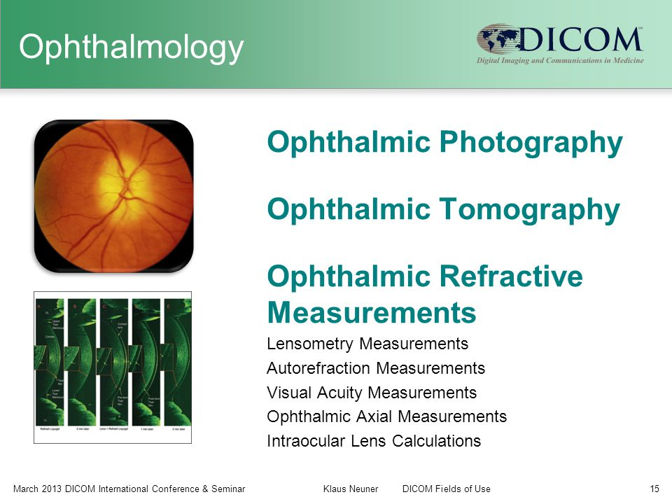 Ophthalmology Ophthalmic Photography Ophthalmic Tomography