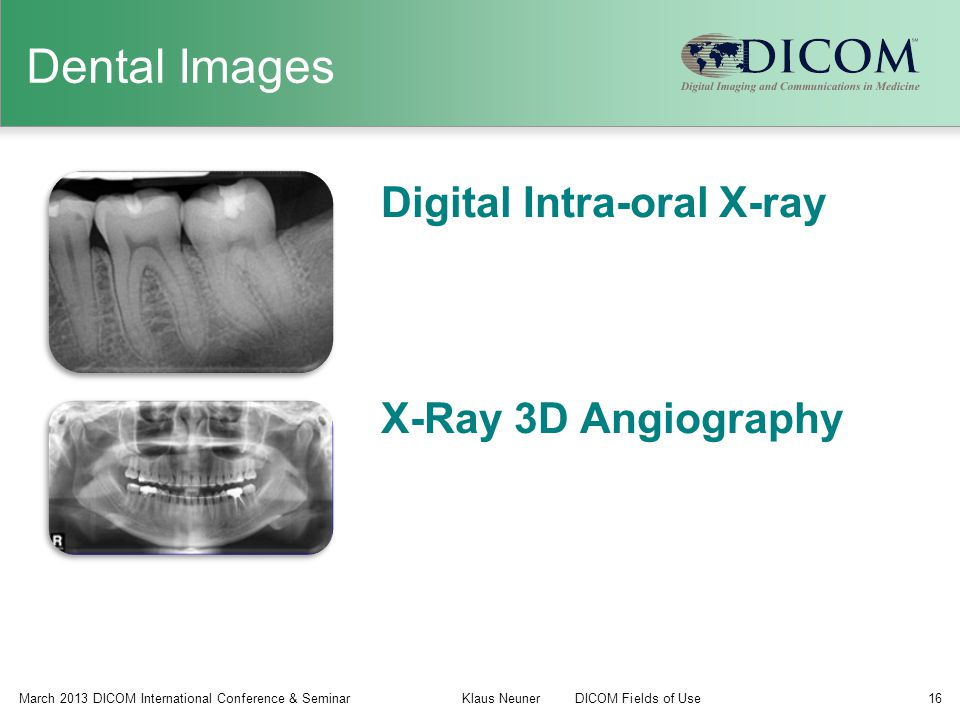 Dental Images Digital Intra-oral X-ray X-Ray 3D Angiography