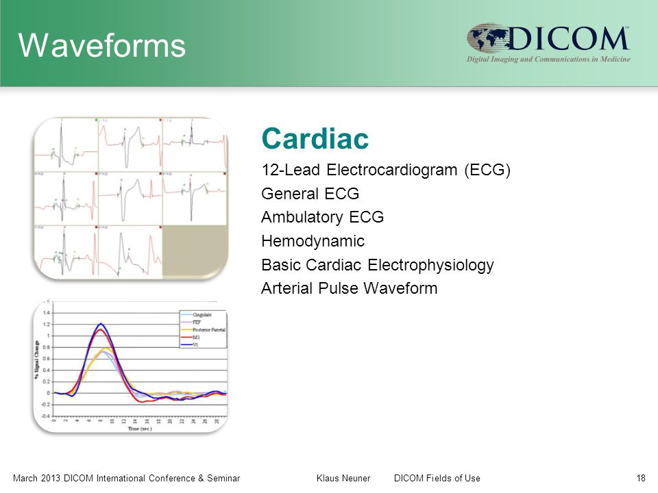 Waveforms Cardiac 12-Lead Electrocardiogram (ECG) General ECG