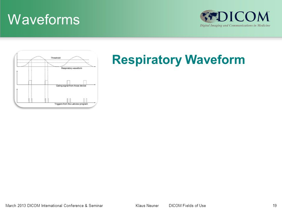 Waveforms Respiratory Waveform