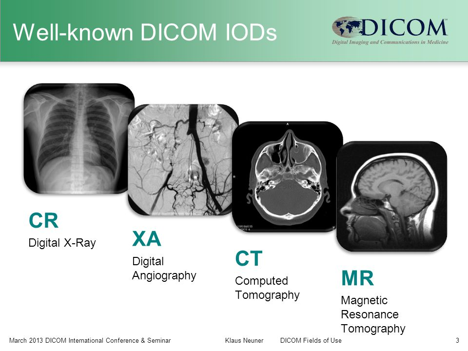Well-known DICOM IODs CR XA CT MR Digital X-Ray Digital Angiography