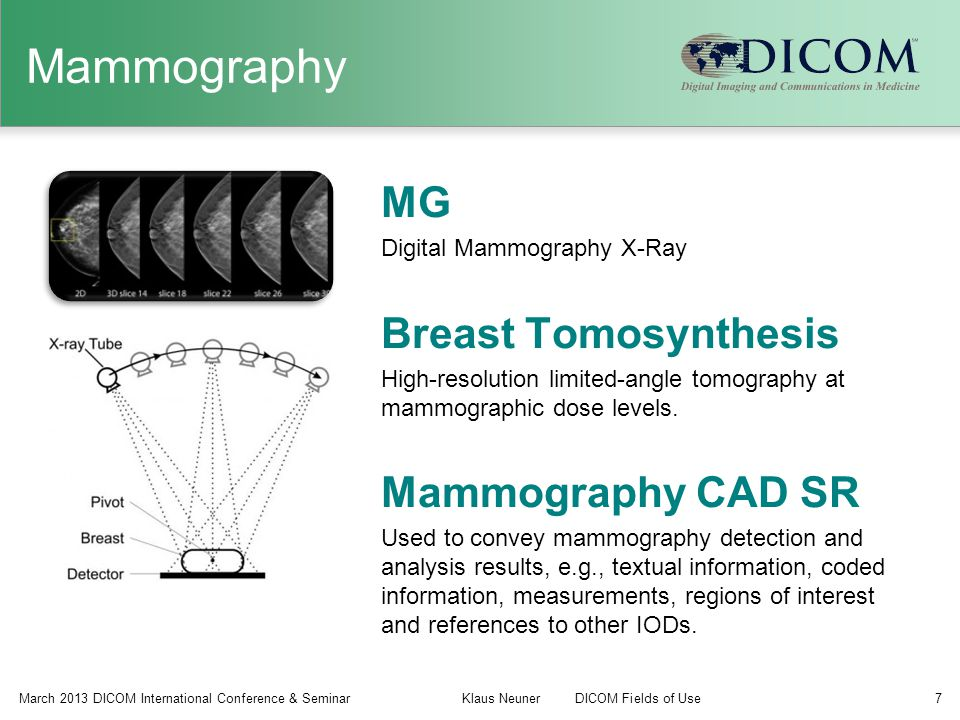 Mammography MG Breast Tomosynthesis Mammography CAD SR