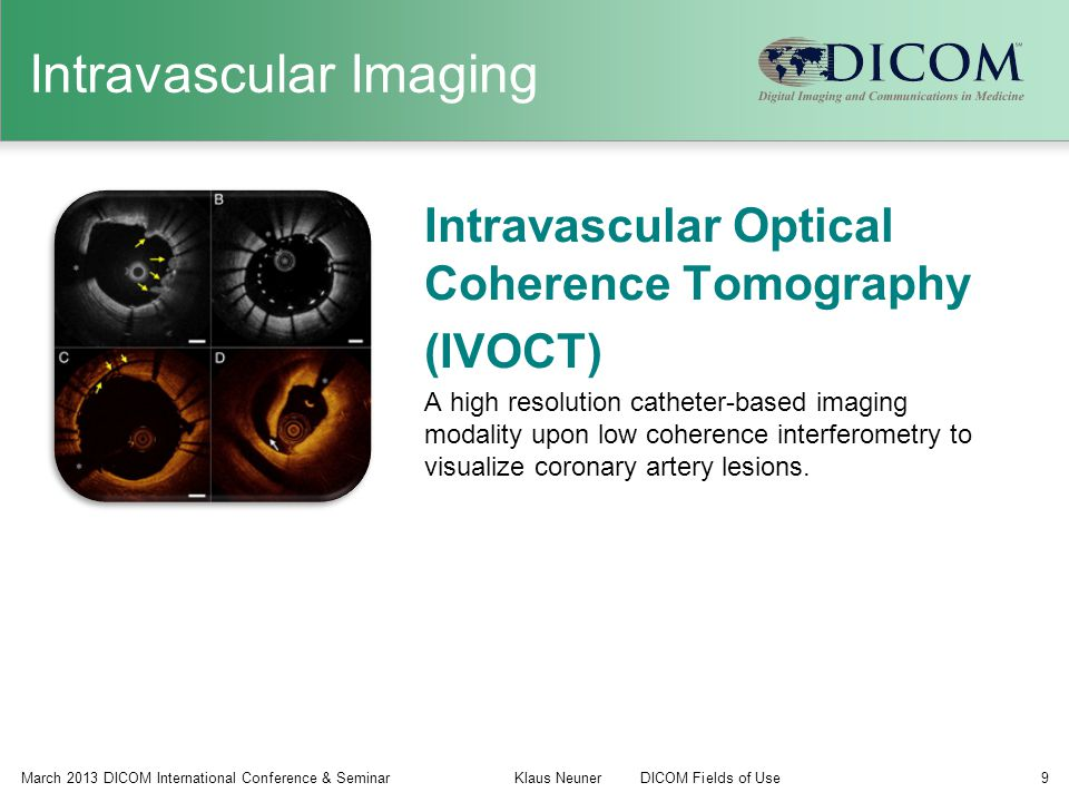 Intravascular Imaging