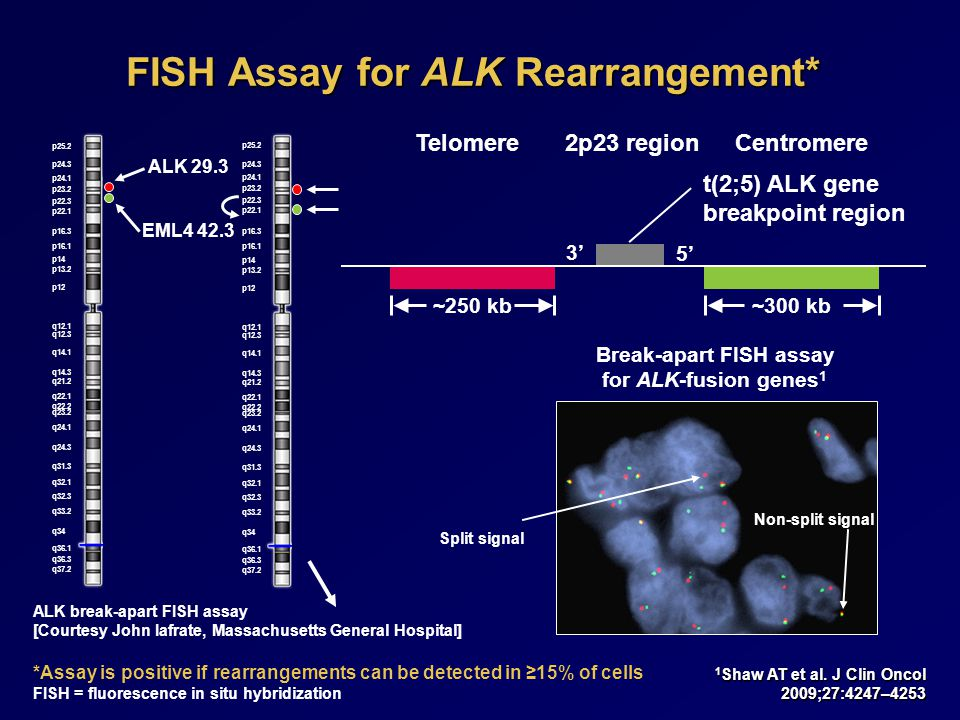 FISH Assay for ALK Rearrangement*