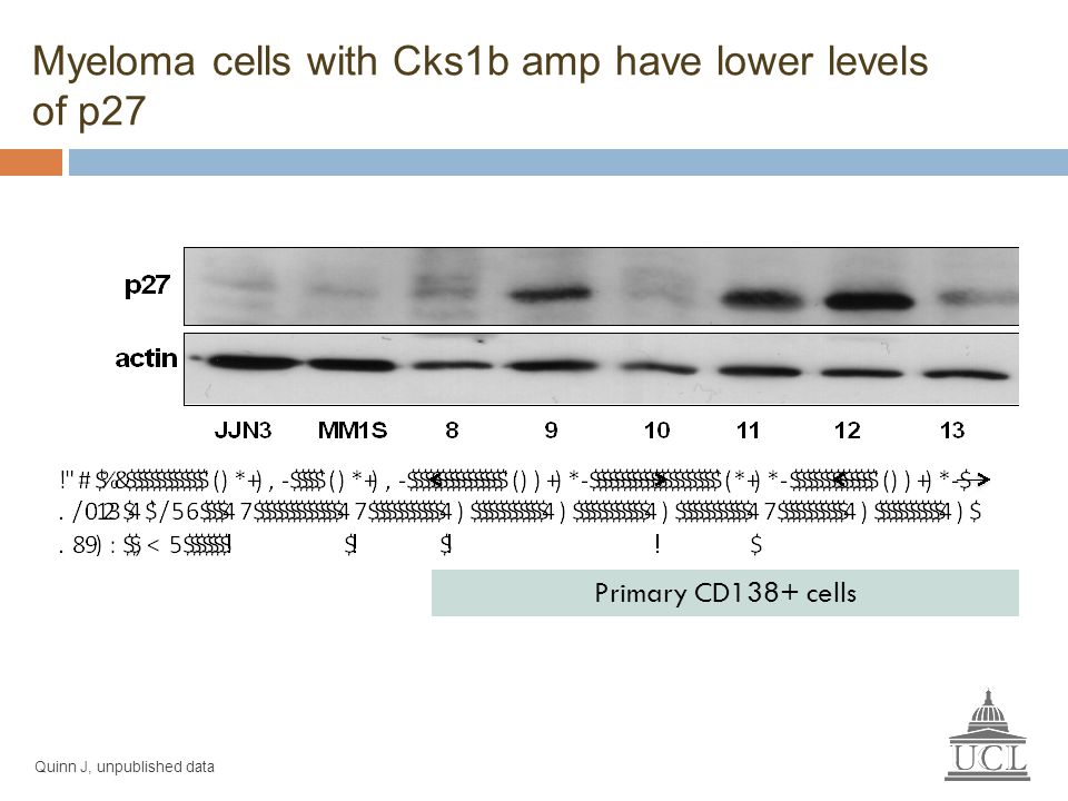 Myeloma cells with Cks1b amp have lower levels of p27