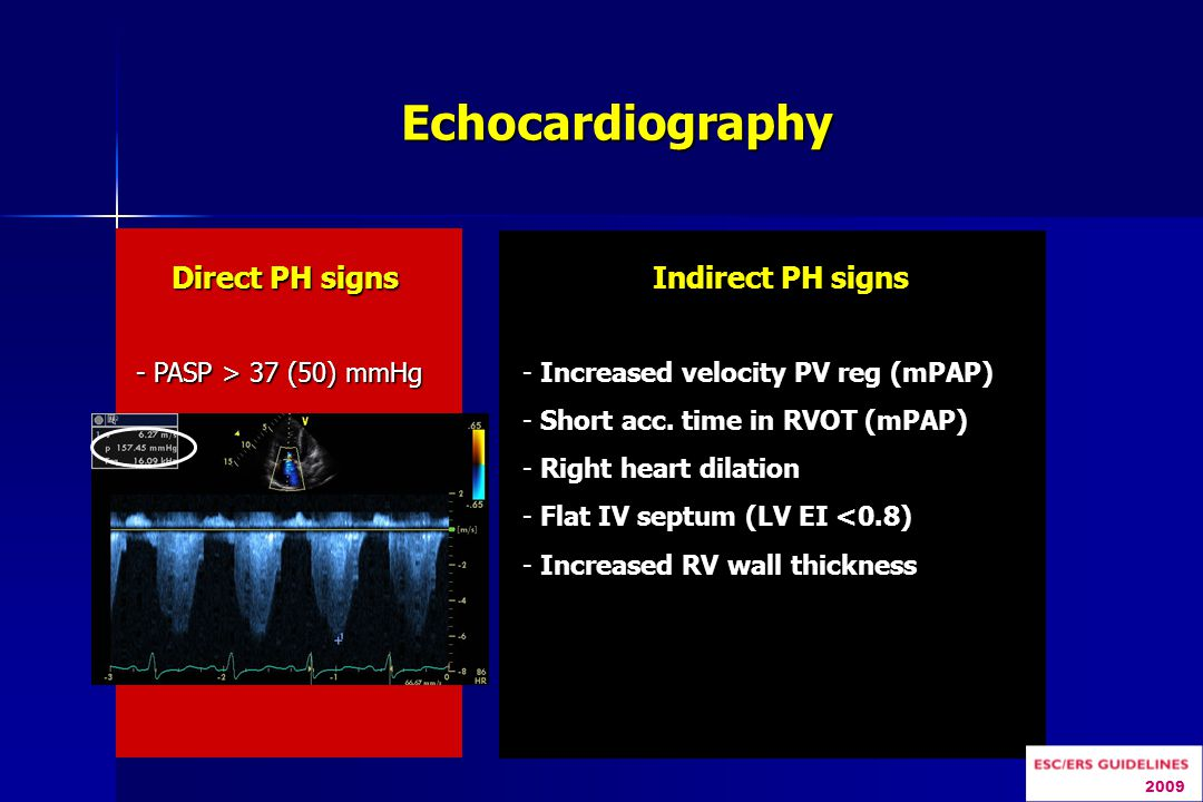 Echocardiography Direct PH signs Indirect PH signs