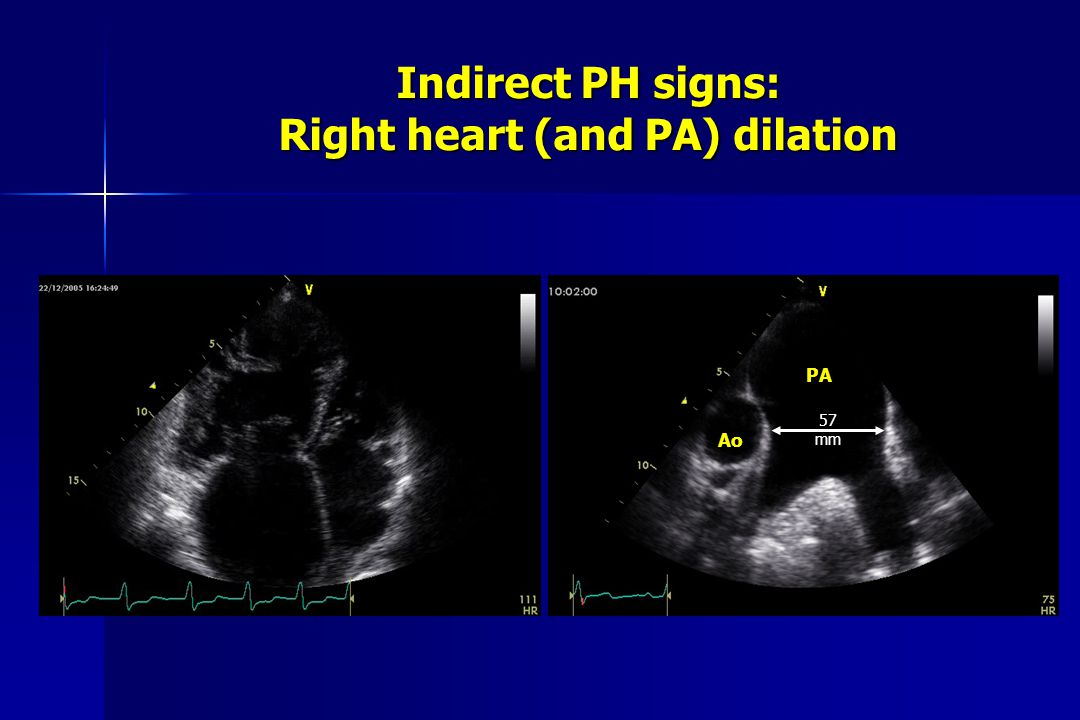 Indirect PH signs: Right heart (and PA) dilation