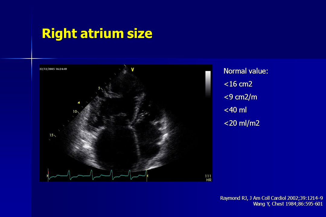 Right atrium size Normal value: <16 cm2 <9 cm2/m <40 ml